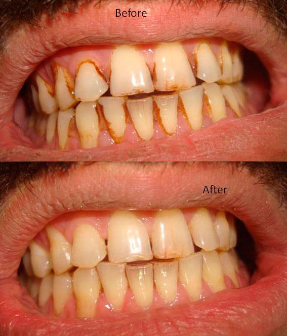 scaling-of-teeth