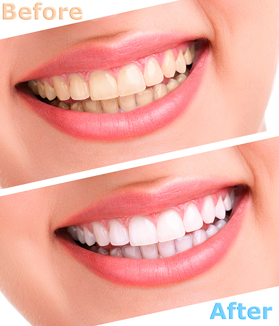 tooth_whitening